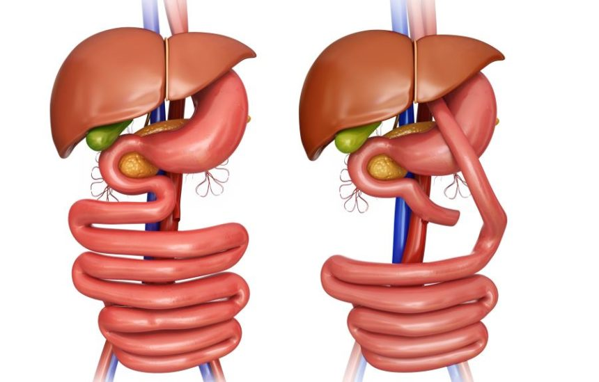Some Bariatric Surgery Options